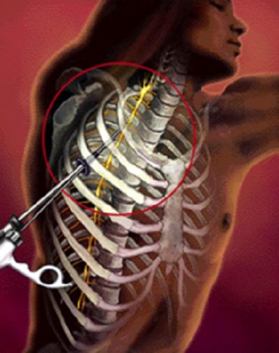 Aşırı terleme,  hiperhidrozis, cerrahi tedavi