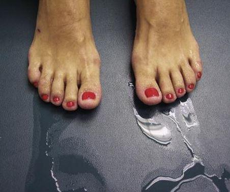 Ayaklarda aşırı terleme, ayaklarda hiperhidrozis