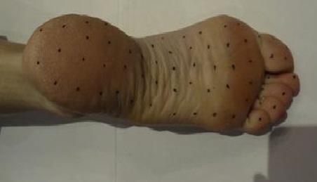 Ayaklarda hiperhidrozis ve botox uygulaması