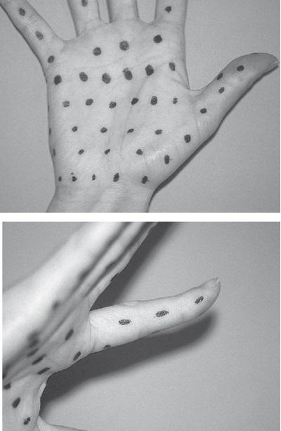 Ellerde aşırı terleme, ellerde hiperhidrozis, ellerde botox uygulama alanları