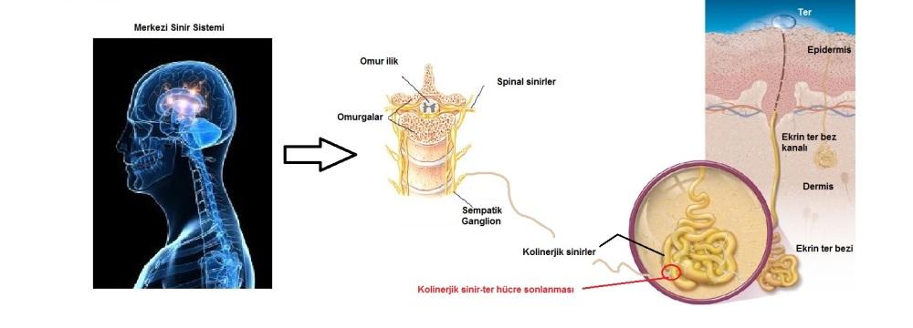 Hiperhidrozis, hiperhidroz, aşırı terleme, ekrin ter bezleri 2