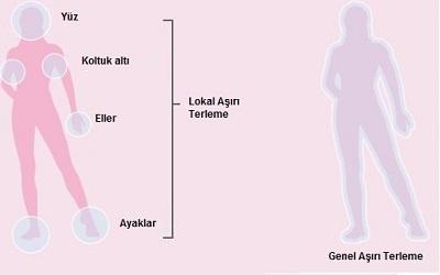 Hiperhidrozis, Lokal ve genel hiperhidroizis.jpg