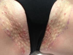 Kasıkta aşırı terleme botox