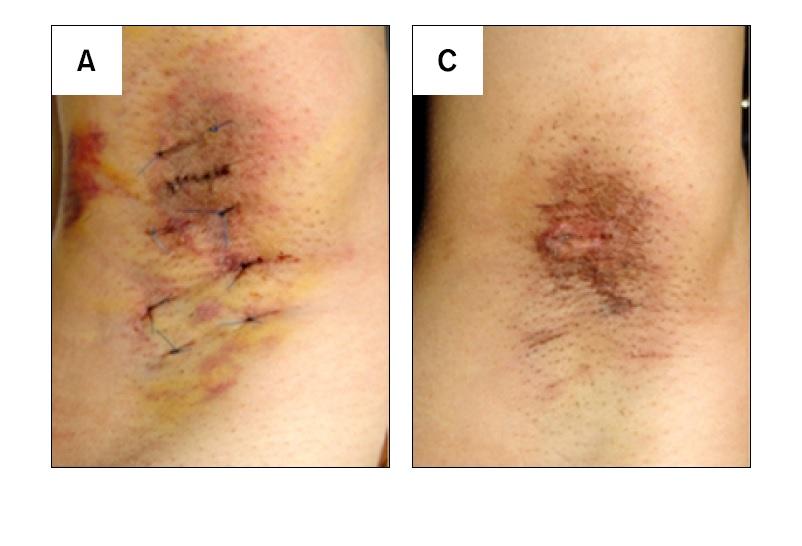 Koltuk altı aşırı terleme cerrahi küretaj 2