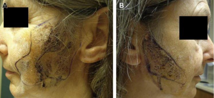 Yüzde aşırı terleme, Frey sendromu, Gustatuar hiperhidrozis.JPG